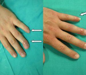 Artrodesi Dita