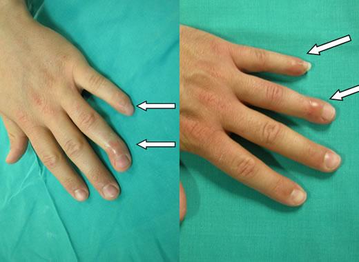 artrodesi-dita-mano-1