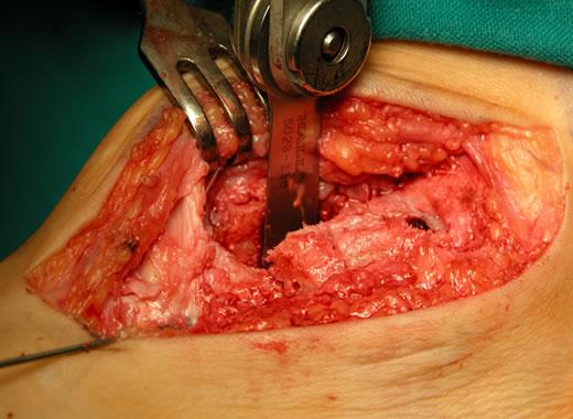 Preparazione del sito di innesto della stecca ossea prelevata dalla tuberosità tibiale anteriore
