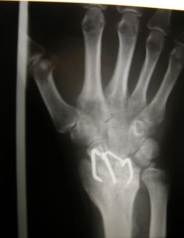 foto a 120 gg di una artrodesi radio-scafo-lunata effettuata per una degenerazione radiocarpica in esiti di frattura articolare del radio