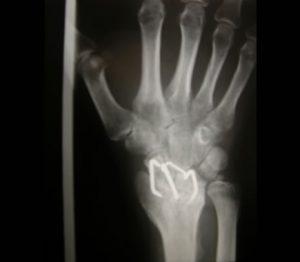 Artrodesi del Polso