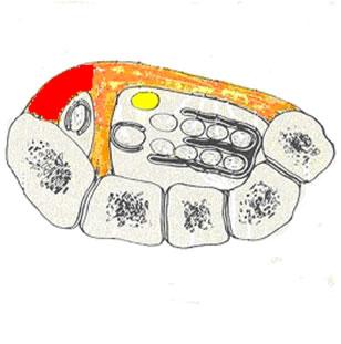 Figura 1 – Visione assiale e coronale del canale carpale. In giallo il nervo mediano; in arancione il legamento traverso del carpo e le sue espansioni (in rosso) a formare il canale di Guyon; in bianco i tendini flessori