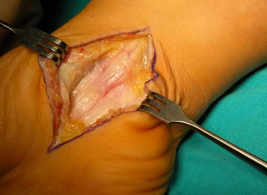 """Figura 10 – Nervo mediano deformato """"a clessidra"""" in un caso già trattato in altra sede 3 anni prima e in cui il legamento era stato sezionato solo parzialmente"""