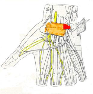 Figura 2 – Visione assiale e coronale del canale carpale. In giallo il nervo mediano; in arancione il legamento traverso del carpo e le sue espansioni (in rosso) a formare il canale di Guyon; in bianco i tendini flessori