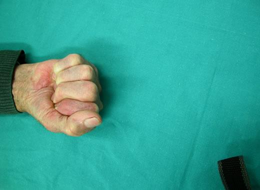 I risultati sono ottimi. Importante anche un buon trattamento fisiochinesiterapico.