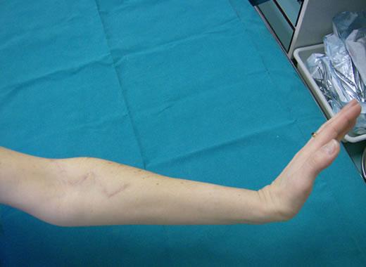 Il nervo peroneo profondo può rimanere incarcerato a livello del tunnel tarsale anteriore